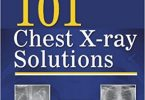 101 Chest X-ray Solutions 1st Edition 2013