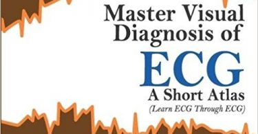 Master Visual Diagnosis of ECG: A Short Atlas (Learn ECG Through ECG) 1st Edition 2013