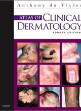 Atlas of Clinical Dermatology,4th Edition 2012