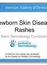 Newborn Skin Disease Rashes ( American Academy of Dermatology )