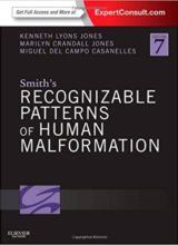 Smith's Recognizable Patterns of Human Malformation 7th Edition 2013