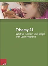 Trisomy 21 What we can learn from people with Down syndrome 2016