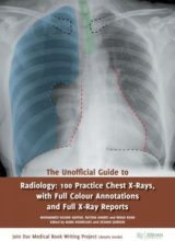 The Unofficial Guide to Radiology 1st Edition 2017