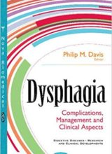 Dysphagia Complications, Management and Clinical Aspects 1st Edition 2017