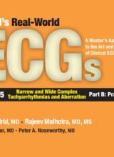 Podrid's Real-World Ecgs, Volume 5B Narrow and Wide Complex Tachyarrhythmias and Aberration—Part B Practice Cases 1st Edition 2016