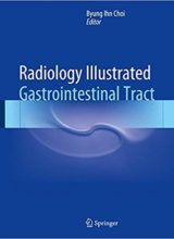 Radiology Illustrated: Gastrointestinal Tract 2015th Edition