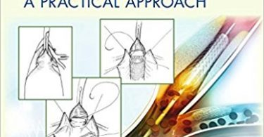 Endovascular and Open Vascular Reconstruction: A Practical Approach 1st Edition 2018