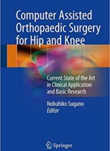 Computer Assisted Orthopaedic Surgery for Hip and Knee Current State of the Art in Clinical Application and Basic Research 1st Edition 2018