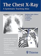 The Chest X-Ray A Systematic Teaching Atlas 1st Edition 2007