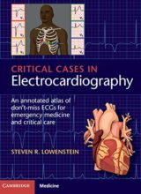 Critical Cases in Electrocardiography: An Annotated Atlas of Don't-Miss ECGs for Emergency and Critical Care 1st Edition, Kindle Edition