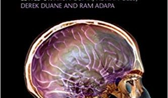 Gupta and Gelb's Essentials of Neuroanesthesia and Neurointensive Care 2nd Edition