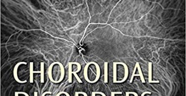 Choroidal Disorders 1st Edition