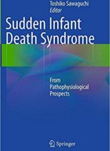 Sudden Infant Death Syndrome: From Pathophysiological Prospects 1st Edition 2014