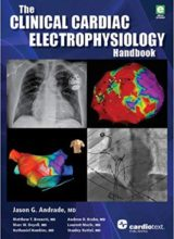 The Clinical Cardiac Electrophysiology Handbook 1st Edition 2016