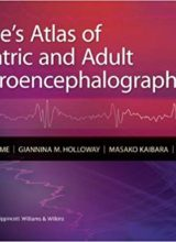 Blume's Atlas of Pediatric and Adult Electroencephalography 1st Edition 2011