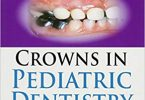 Crowns in Pediatric Dentistry 1st Edition 2015