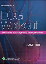 ECG Workout: Exercises in Arrhythmia Interpretation 7th Edition 2017