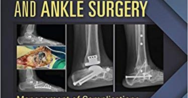 Reconstructive Foot and Ankle Surgery: Management of Complications 3rd Edition 2019