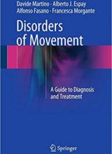 Disorders of Movement: A Guide to Diagnosis and Treatment 1st Edition 2016