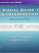 A Visual Guide to ECG Interpretation 2nd Edition 2017