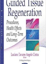 Guided Tissue Regeneration: Procedures, Health Effects and Long-term Outcomes 2017