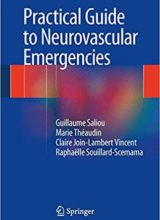 Practical Guide to Neurovascular Emergencies 2014th Edition