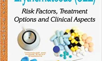 Systemic Lupus Erythematosus SLE: Risk Factors, Treatment Options and Clinical Aspects UK Edition 2017