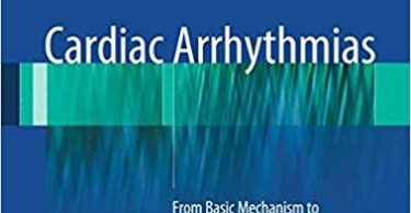 Cardiac Arrhythmias: From Basic Mechanism to State-of-the-Art Management 2014th Edition