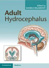 Adult Hydrocephalus 1st Edition 2014
