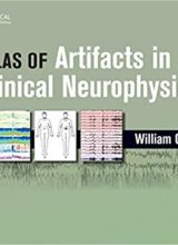 Atlas of Artifacts in Clinical Neurophysiology 1st Edition 2019