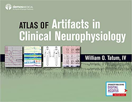 Atlas Artifacts Clinical Neurophysiology 2019 Atlas-of-Artifacts-in-Clinical-Neurophysiology-1st-Edition-2019.jpg