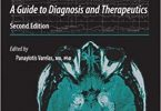 Seizures in Critical Care A Guide to Diagnosis and Therapeutics 2nd