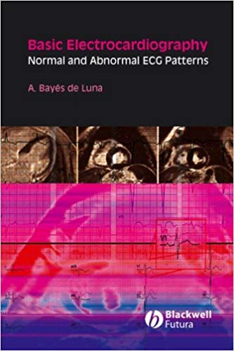Basic Electrocardiography Normal and Abnormal ECG Patterns 1st Edition