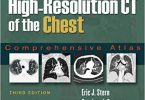 High Resolution CT of the Chest Comprehensive Atlas 3rd edition