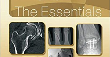 Musculoskeletal Imaging The Essentials First Edition