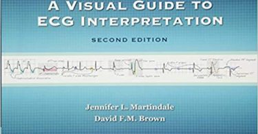 A Visual Guide to ECG Interpretation 2e edition