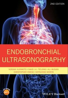 Endobronchial Ultrasonography 2nd edition