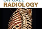On Call Radiology 1st Edition