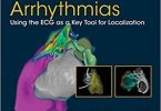 The Origins of Ventricular Arrhythmias Using the ECG As a Key Tool for Localization 1st Edition
