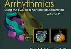 The Origins of Ventricular Arrhythmias Using the ECG Volume 2
