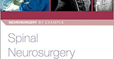 Spinal Neurosurgery 1st Edition