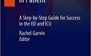 Intubating the Critically Ill Patient A Step-by-Step Guide for Success in the ED and ICU 2020