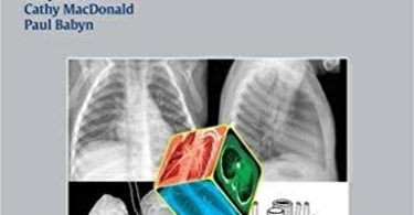 Chest Radiographic Interpretation in Pediatric Cardiac Patients 1st edition