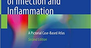 Radionuclide Imaging of Infection and Inflammation A Pictorial Case-Based Atlas