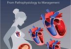 Peripartum CardiomyopathyFrom Pathophysiology to Management 1st Edition