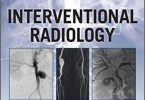 Radiology Case Review Series Interventional Radiology 1st Edition