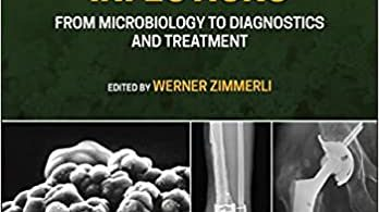 Bone and Joint Infections From Microbiology to Diagnostics and Treatment 2nd Edition
