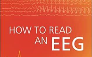 How to Read an EEG 1st Edition 2021