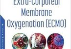 The History of Extra-corporeal Membrane Oxygenation Ecmo From Start to Covid