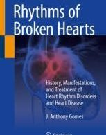 Rhythms of Broken Hearts History, Manifestations, and Treatment of Heart Rhythm Disorders and Heart Disease